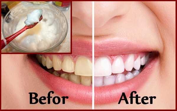 kokosolie en tanden